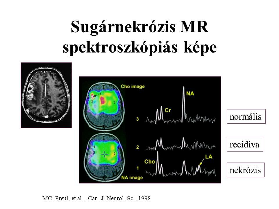Sugárnekrózis MR spektroszkópiás képe MC. Preul, et al., Can. J. Neurol. Sci. 1998 normális recidiva nekrózis