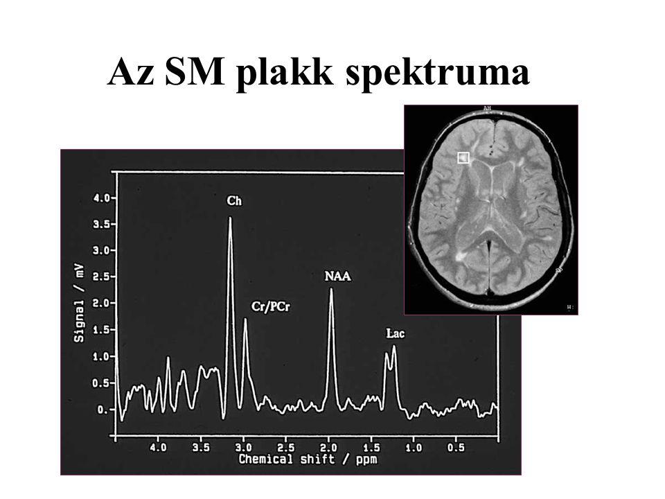 Az SM plakk spektruma