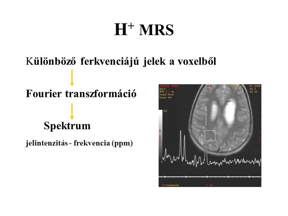 H + MRS Különböző ferkvenciájú jelek a voxelből Fourier transzformáció Spektrum jelintenzitás - frekvencia (ppm)