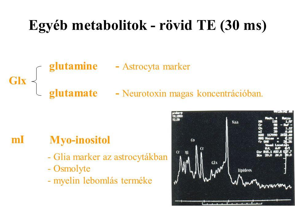 Egyéb metabolitok - rövid TE (30 ms) mI Myo-inositol - Glia marker az astrocytákban - Osmolyte - myelin lebomlás terméke Glx glutamine glutamate - Ast