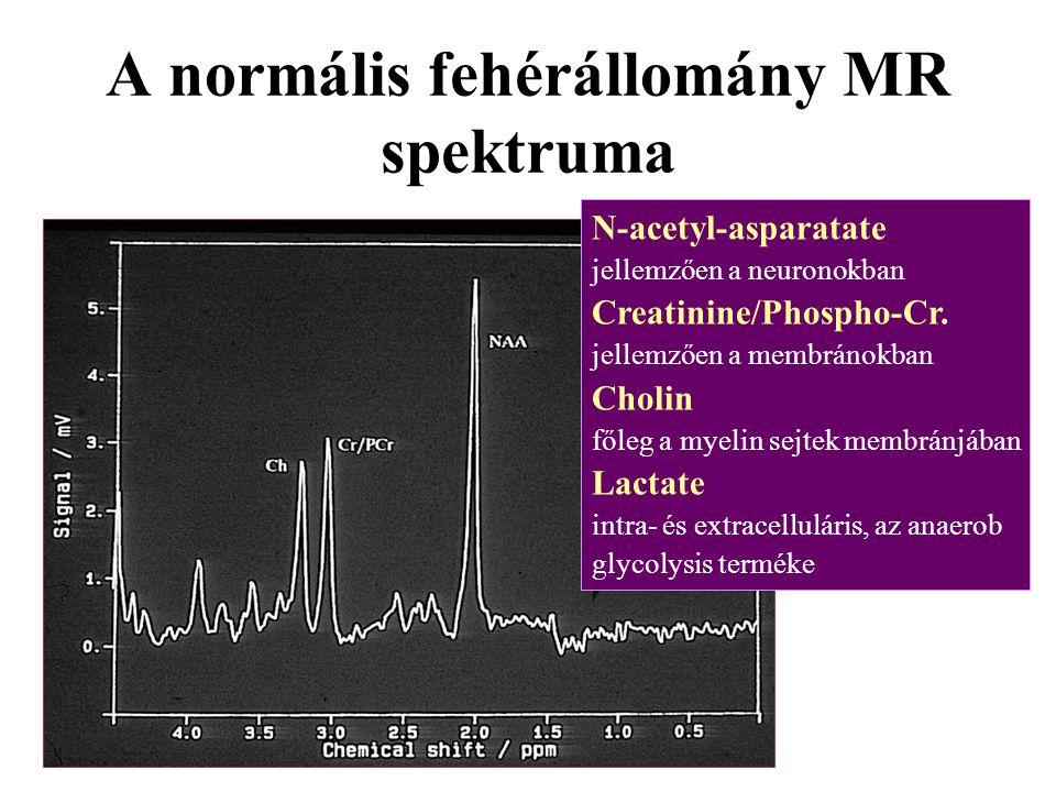A normális fehérállomány MR spektruma N-acetyl-asparatate jellemzően a neuronokban Creatinine/Phospho-Cr. jellemzően a membránokban Cholin főleg a mye