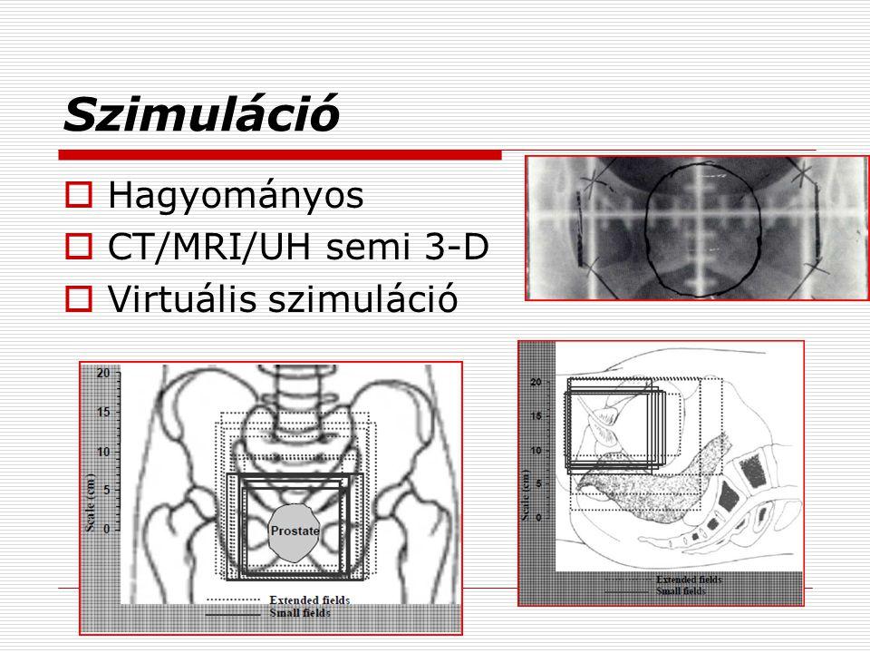 A sugárterápia aktualitása  Modern konformális 3D irradiáció  CT szimuláció  Nagyobb dózis a célterületre, magasabb rizikószerv védelem mellett.