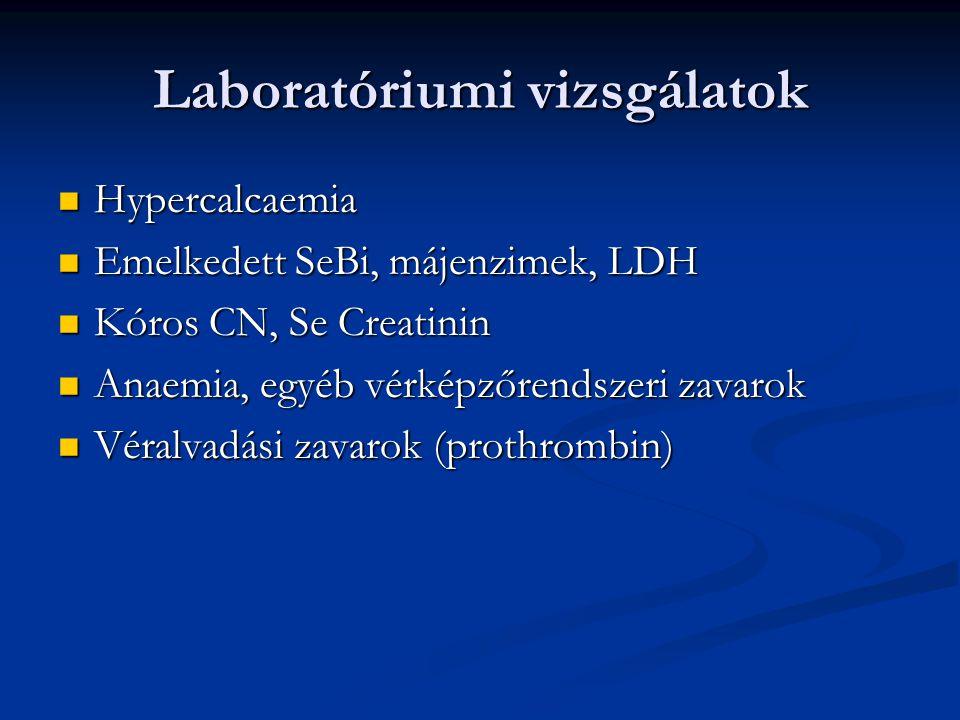 Paraneopláziák 4.