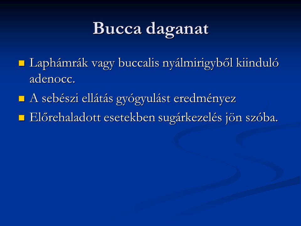 Bucca daganat Laphámrák vagy buccalis nyálmirigyből kiinduló adenocc.
