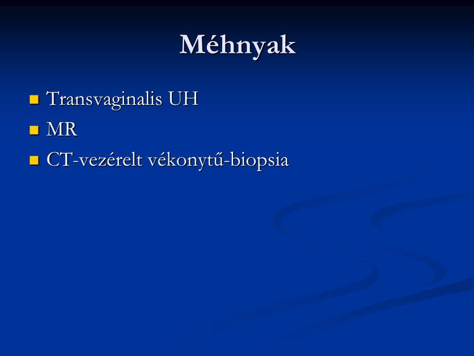 Méhnyak Transvaginalis UH Transvaginalis UH MR MR CT-vezérelt vékonytű-biopsia CT-vezérelt vékonytű-biopsia