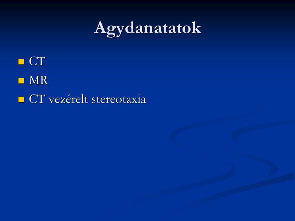 Agydanatatok CT CT MR MR CT vezérelt stereotaxia CT vezérelt stereotaxia