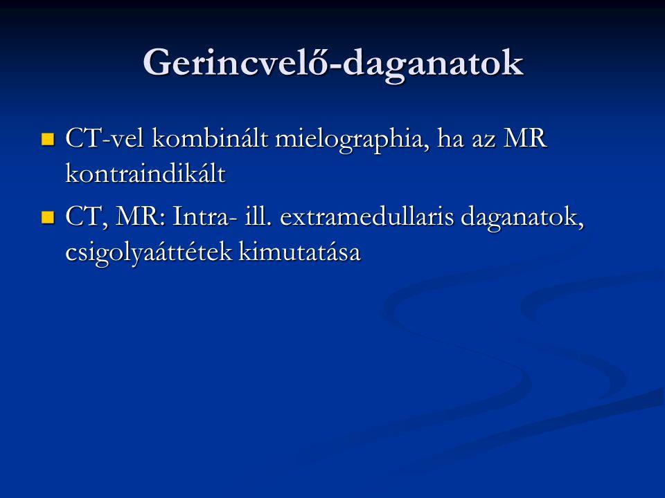 Arckoponya- és nyaki tumorok MR jobb, de a CT könnyebben elérhető MR jobb, de a CT könnyebben elérhető UH Doppler-szonográfia (erek, nyaki lágyrészek) UH Doppler-szonográfia (erek, nyaki lágyrészek) Nyálmirigyek,pajzsmirigy,mellékpajzsmirigy: Nyálmirigyek,pajzsmirigy,mellékpajzsmirigy: UH,CT,MR, pajzsmirigy:Tc-99m-pertechnetát UH,CT,MR, pajzsmirigy:Tc-99m-pertechnetát mellékpajzsmirigy: Tc-99m-MIBI mellékpajzsmirigy: Tc-99m-MIBI