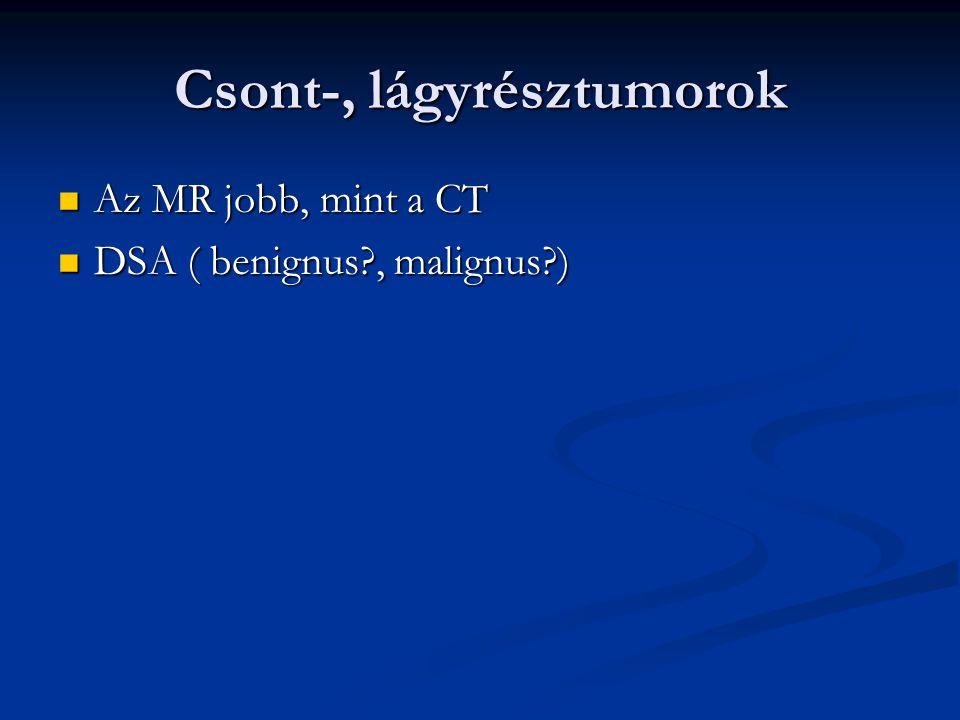 Csont-, lágyrésztumorok Az MR jobb, mint a CT Az MR jobb, mint a CT DSA ( benignus?, malignus?) DSA ( benignus?, malignus?)