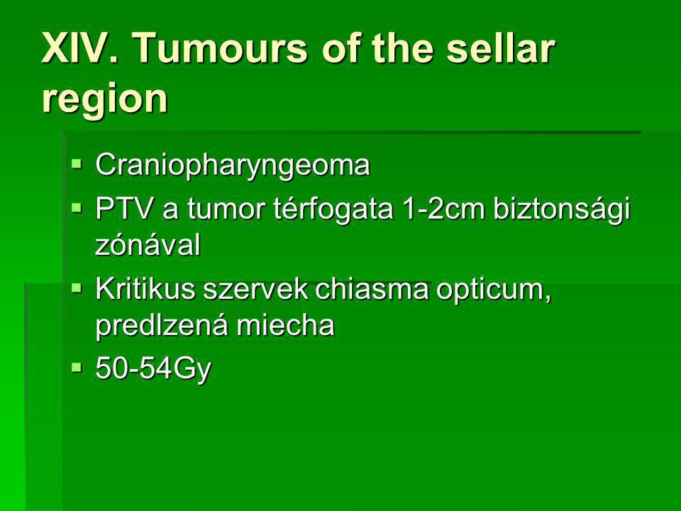 XIV. Tumours of the sellar region  Craniopharyngeoma  PTV a tumor térfogata 1-2cm biztonsági zónával  Kritikus szervek chiasma opticum, predlzená m