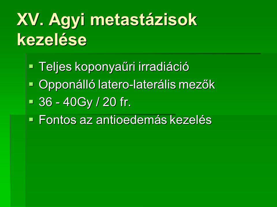 XV. Agyi metastázisok kezelése  Teljes koponyaűri irradiáció  Opponálló latero-laterális mezők  36 - 40Gy / 20 fr.  Fontos az antioedemás kezelés