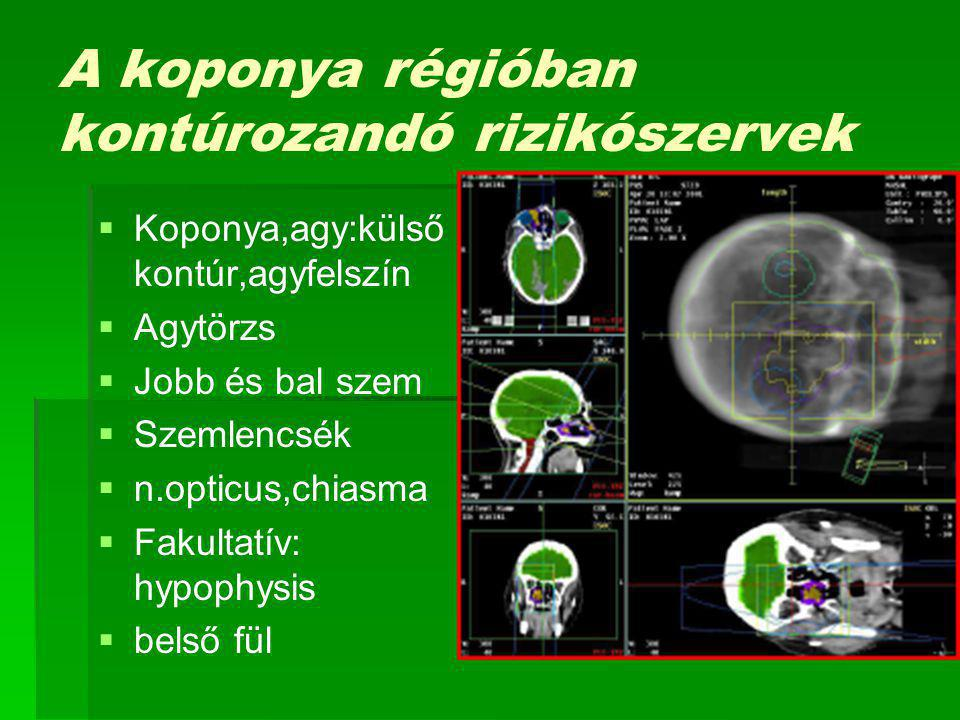A koponya régióban kontúrozandó rizikószervek   Koponya,agy:külső kontúr,agyfelszín   Agytörzs   Jobb és bal szem   Szemlencsék   n.opticus,chiasma   Fakultatív: hypophysis   belső fül