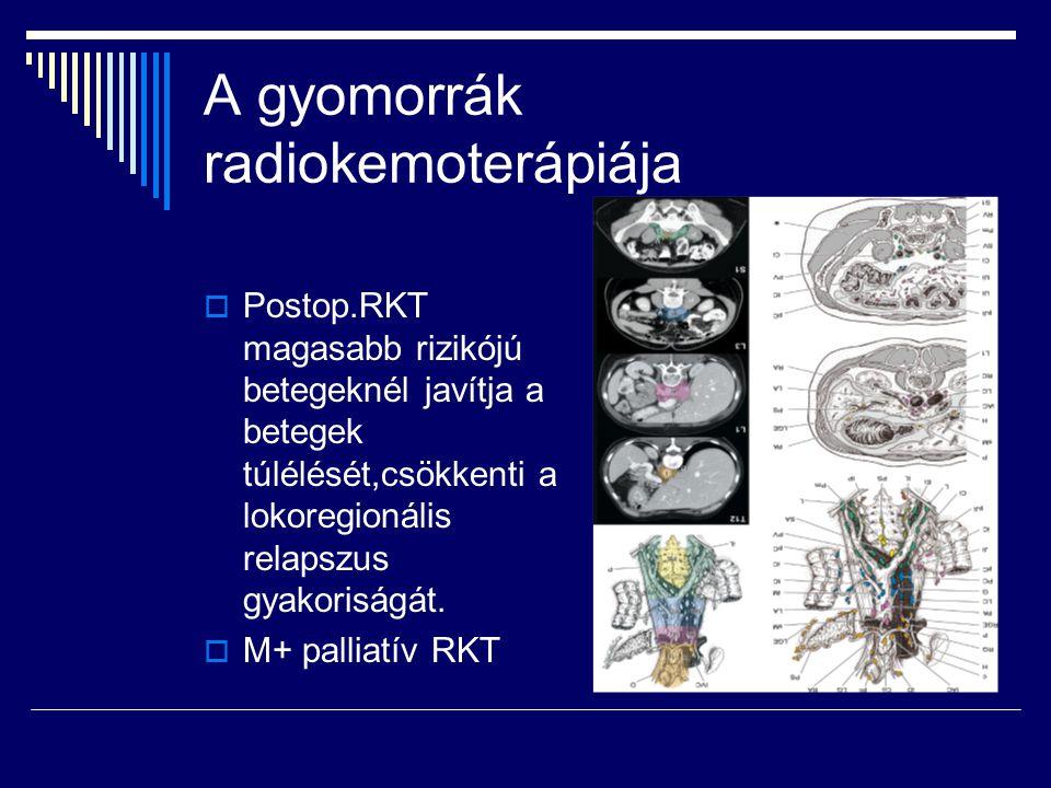 A gyomorrák radiokemoterápiája  Postop.RKT magasabb rizikójú betegeknél javítja a betegek túlélését,csökkenti a lokoregionális relapszus gyakoriságát