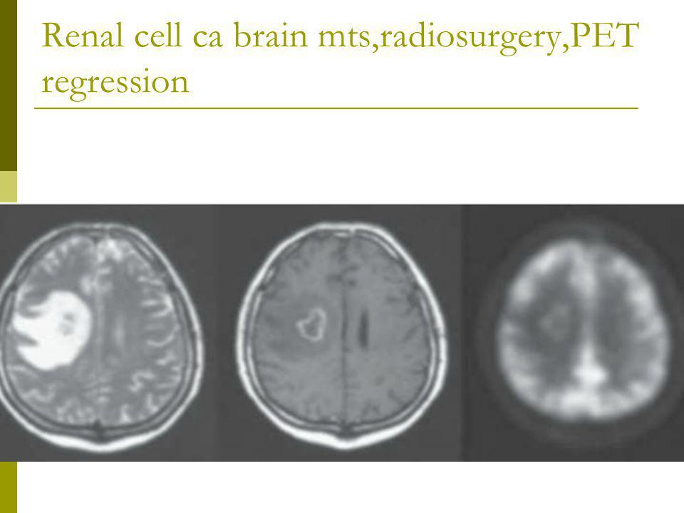 Renal cell ca brain mts,radiosurgery,PET regression