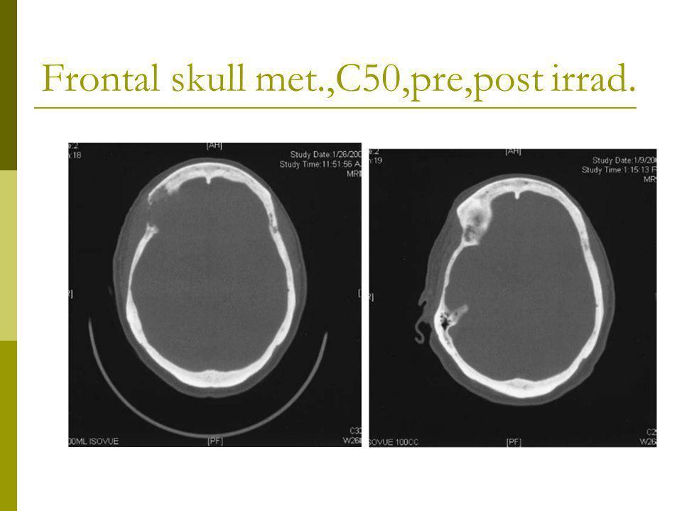 Frontal skull met.,C50,pre,post irrad.