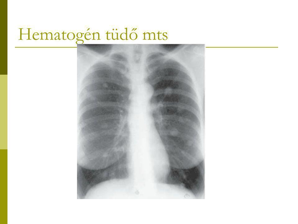 Hematogén tüdő mts
