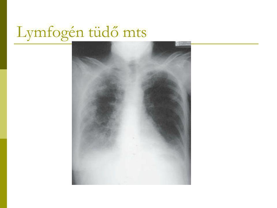 Lymfogén tüdő mts