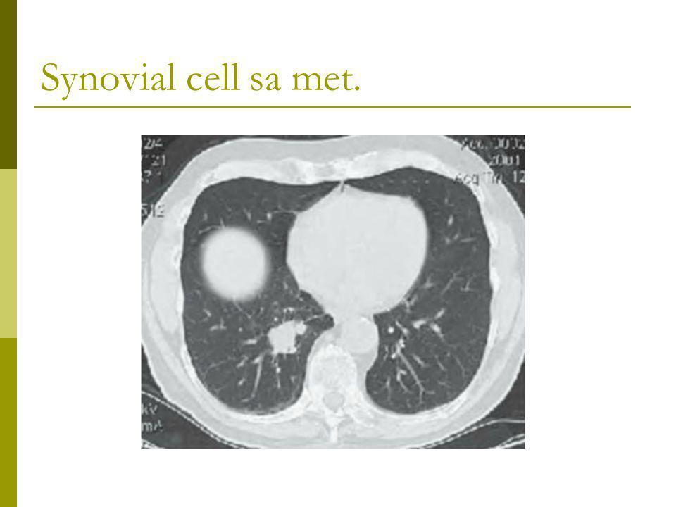 Synovial cell sa met.