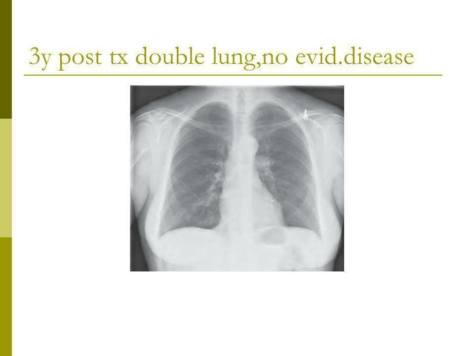 3y post tx double lung,no evid.disease