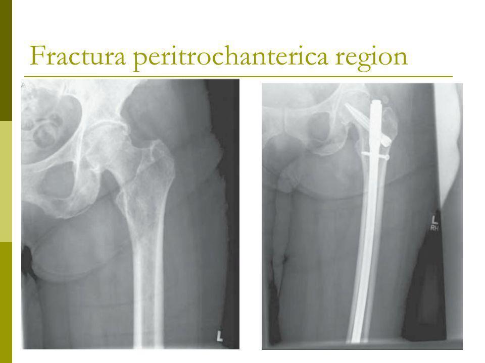 Fractura peritrochanterica region