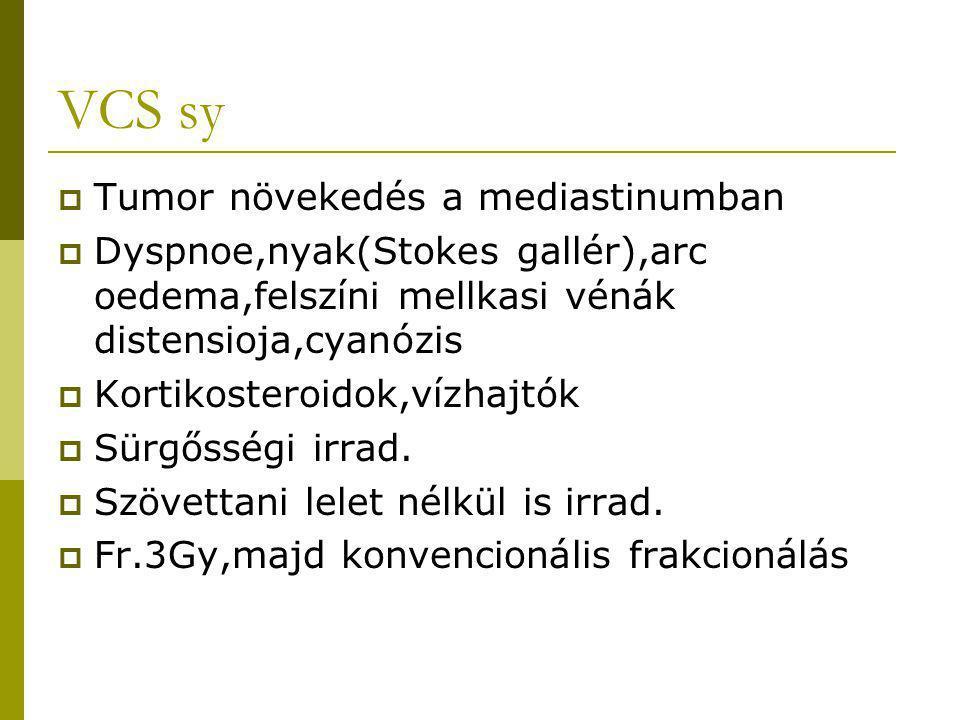 VCS sy  Tumor növekedés a mediastinumban  Dyspnoe,nyak(Stokes gallér),arc oedema,felszíni mellkasi vénák distensioja,cyanózis  Kortikosteroidok,víz