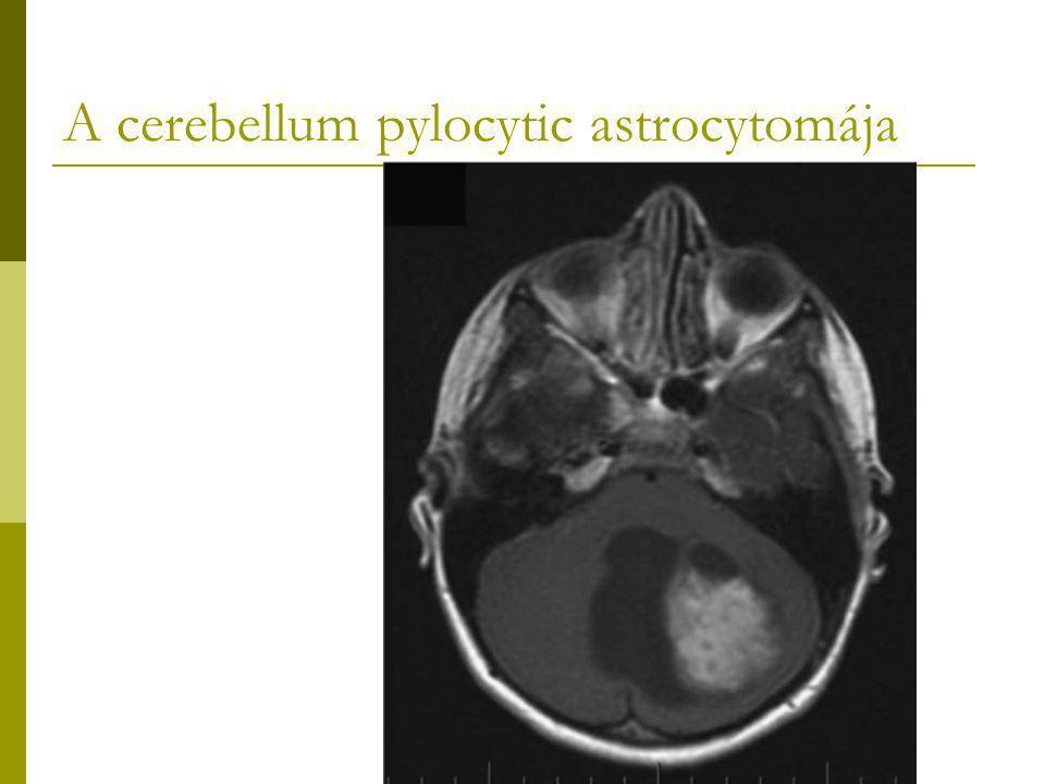 A cerebellum pylocytic astrocytomája