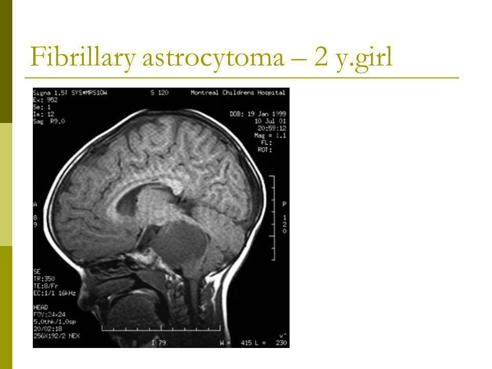 Fibrillary astrocytoma – 2 y.girl