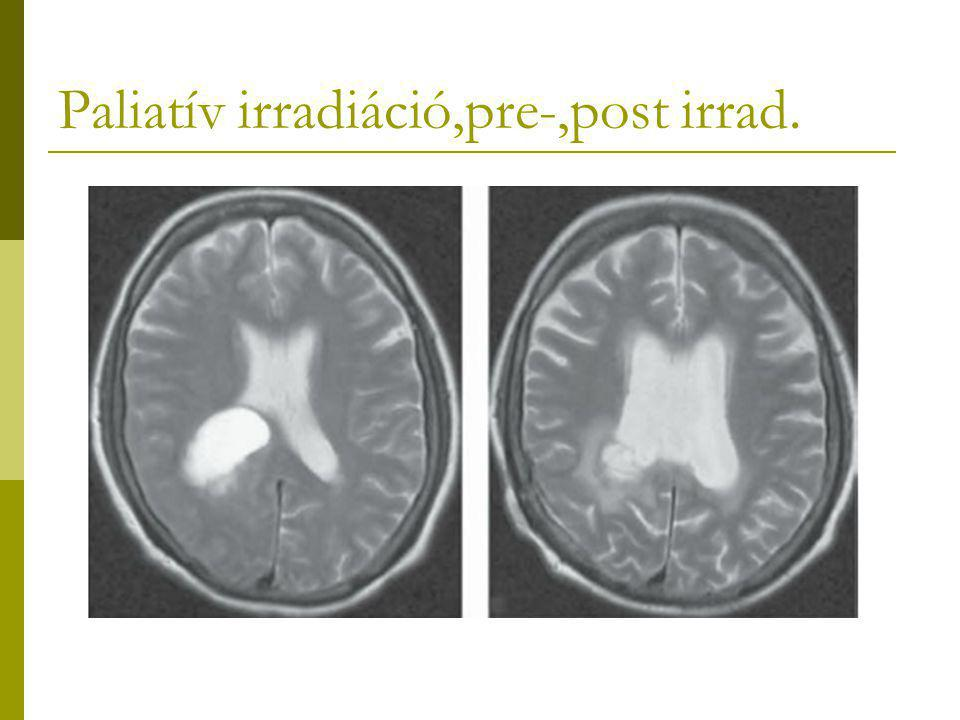 Paliatív irradiáció,pre-,post irrad.
