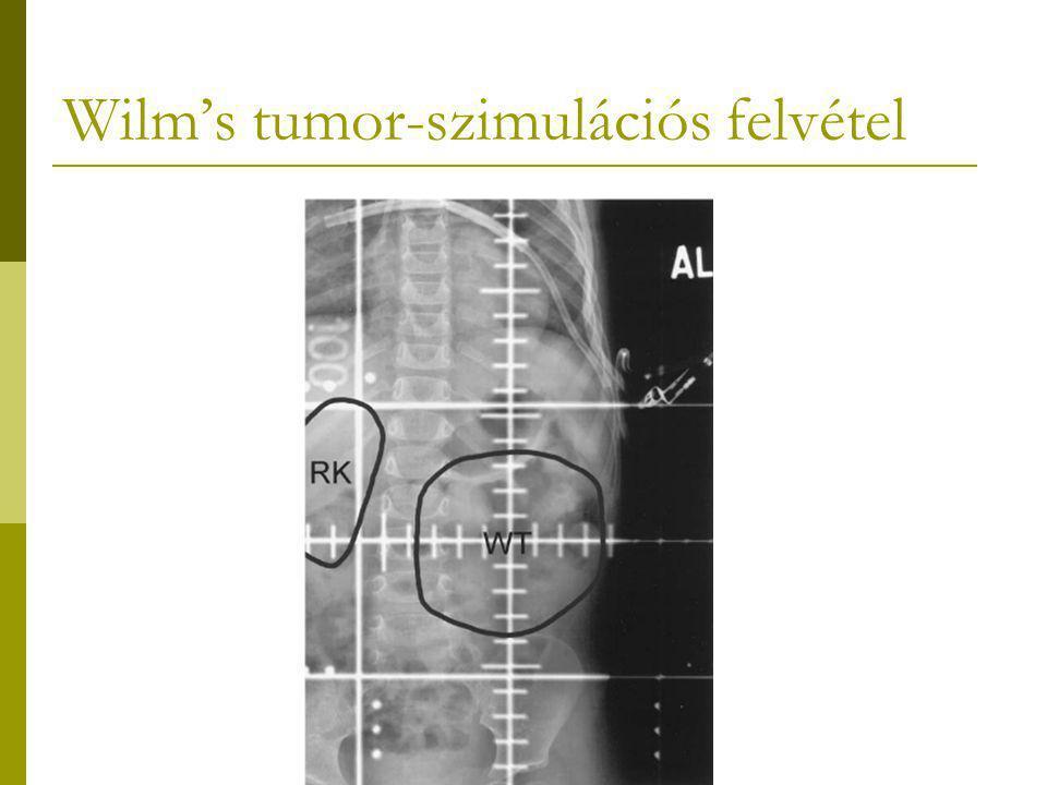 Wilm's tumor-szimulációs felvétel
