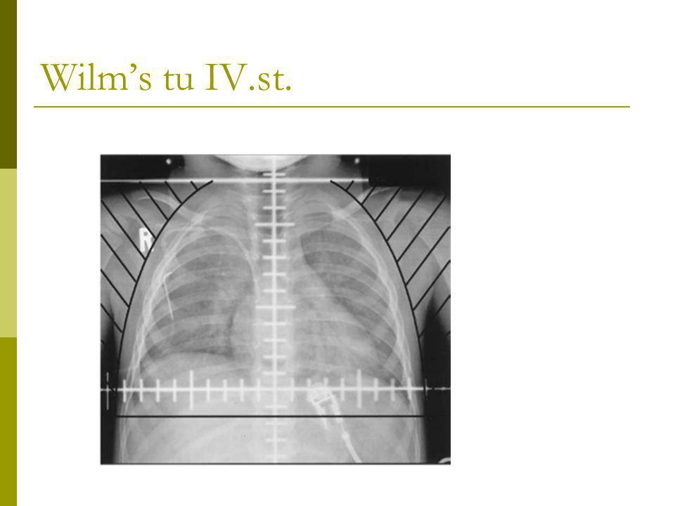Wilm's tu IV.st.