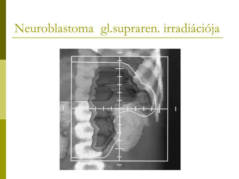 Neuroblastoma gl.supraren. irradiációja