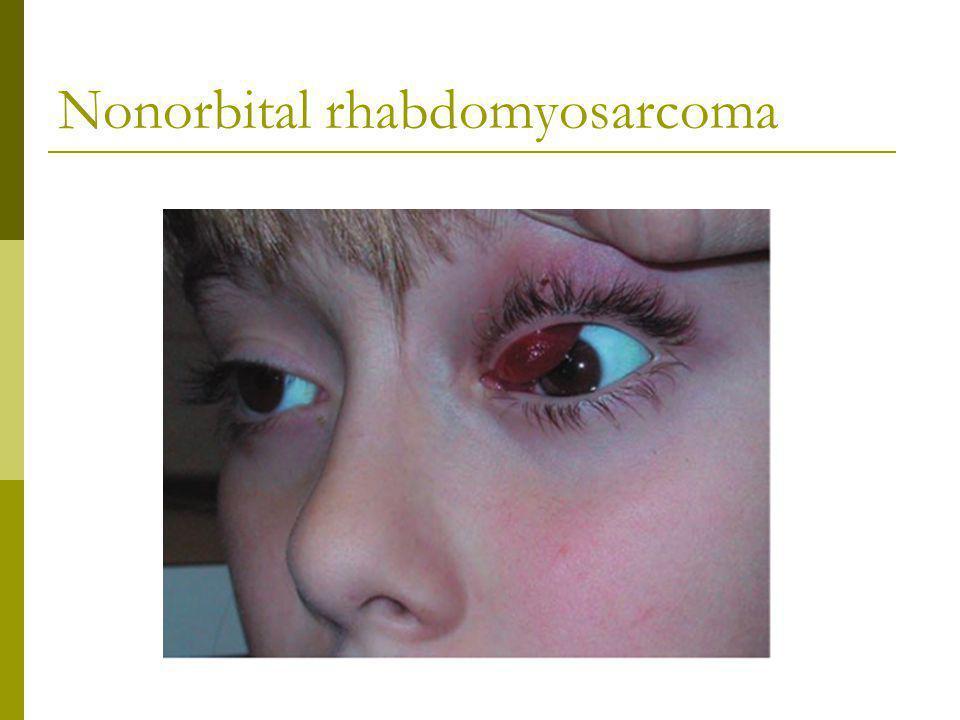 Nonorbital rhabdomyosarcoma