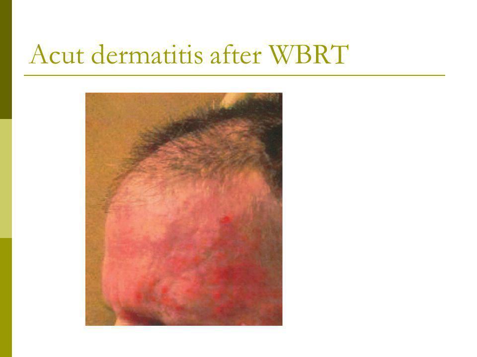 Acut dermatitis after WBRT