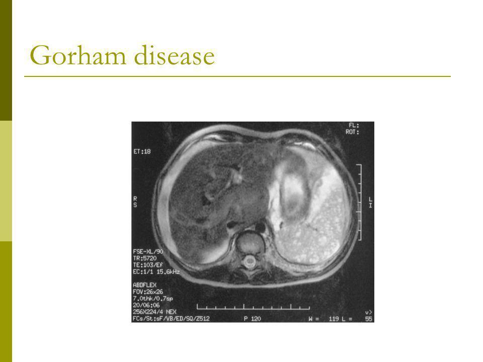 Gorham disease