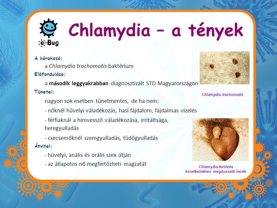 Chlamydia – a tények A kórokozó: a Chlamydia trachomatis baktérium Előfordulása: a második leggyakrabban diagnosztizált STD Magyarországon Tünetei: na