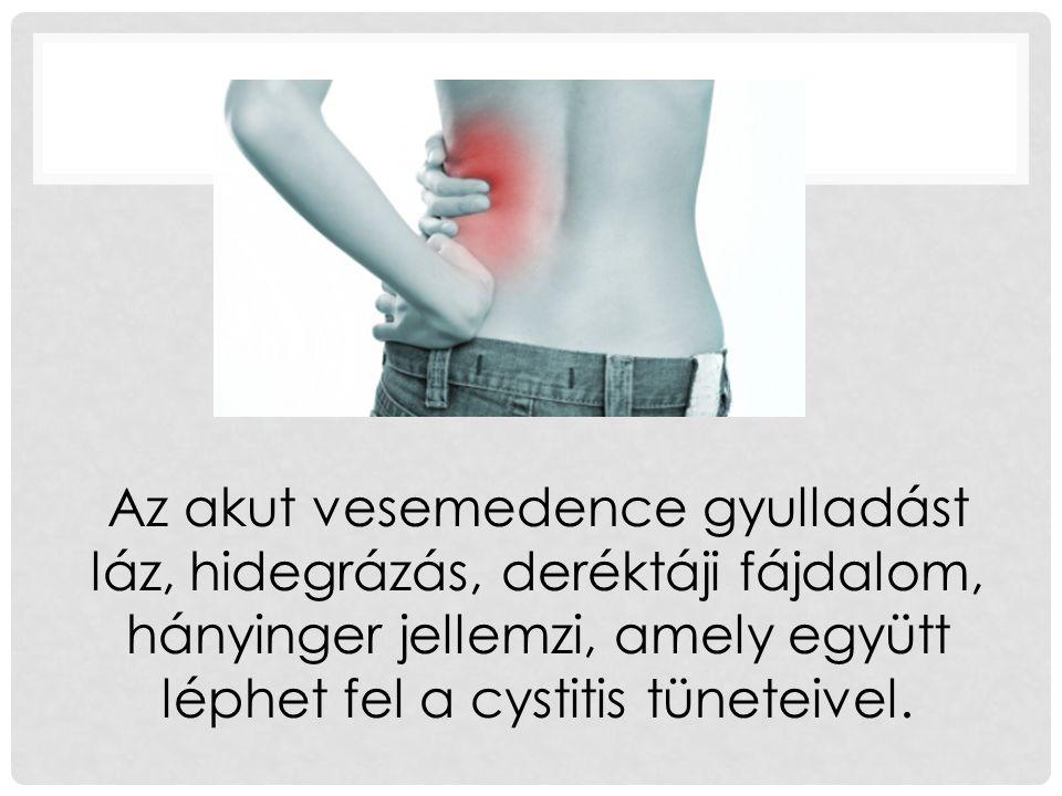 Az akut vesemedence gyulladást láz, hidegrázás, deréktáji fájdalom, hányinger jellemzi, amely együtt léphet fel a cystitis tüneteivel.