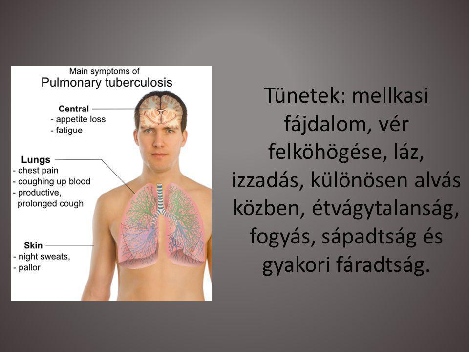 Tünetek: mellkasi fájdalom, vér felköhögése, láz, izzadás, különösen alvás közben, étvágytalanság, fogyás, sápadtság és gyakori fáradtság.