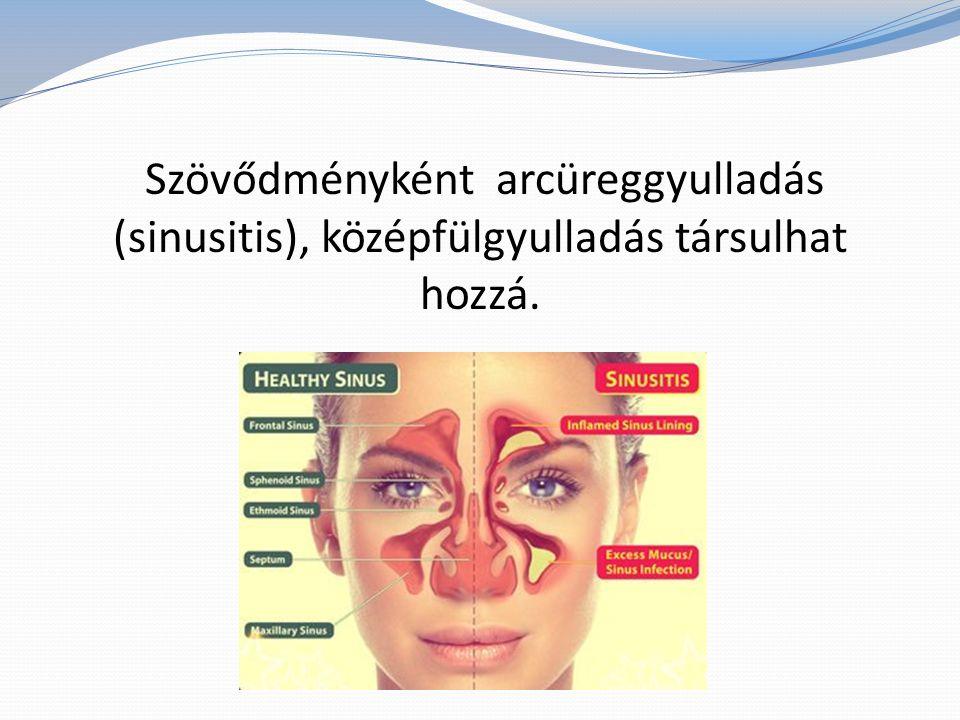 Szövődményként arcüreggyulladás (sinusitis), középfülgyulladás társulhat hozzá.