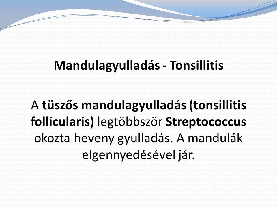Mandulagyulladás - Tonsillitis A tüszős mandulagyulladás (tonsillitis follicularis) legtöbbször Streptococcus okozta heveny gyulladás. A mandulák elge
