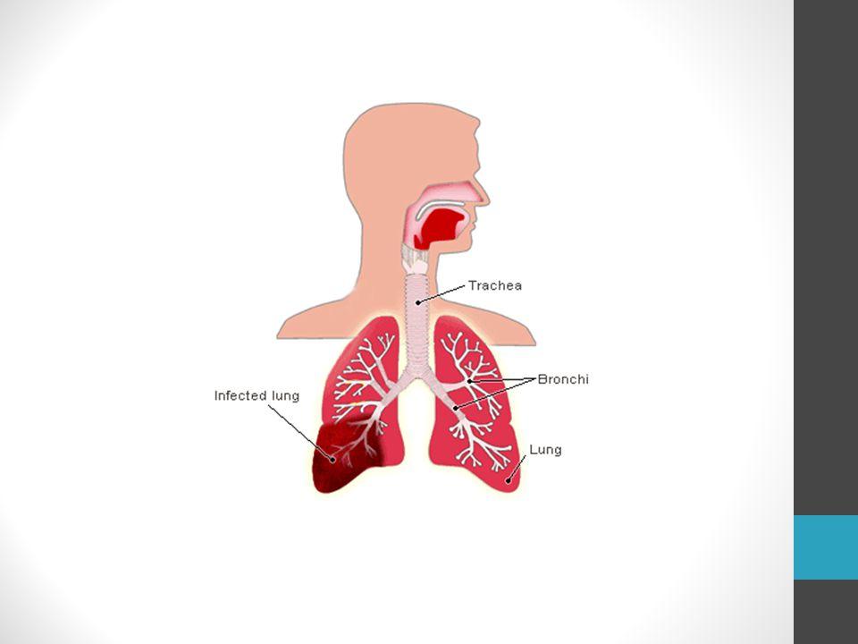 Amennyiben az idegen test beszorul valamelyik főhörgő bemenetébe a heves tünetek csillapulnak kissé.
