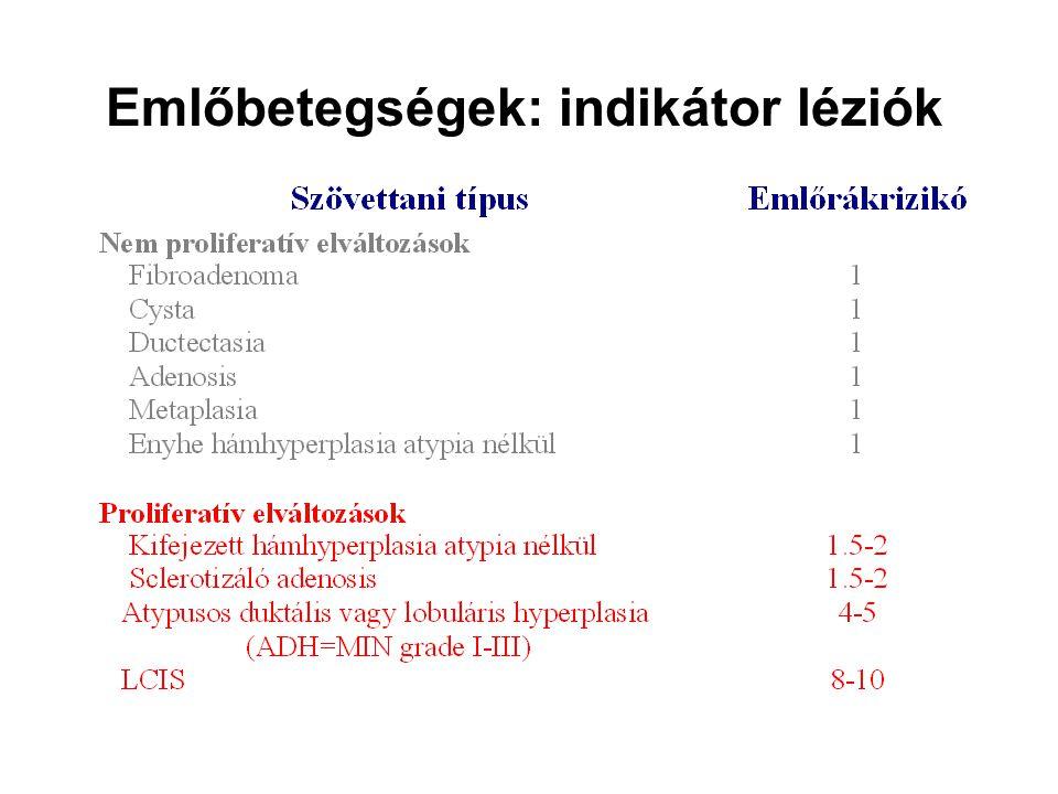 Emlőbetegségek: indikátor léziók