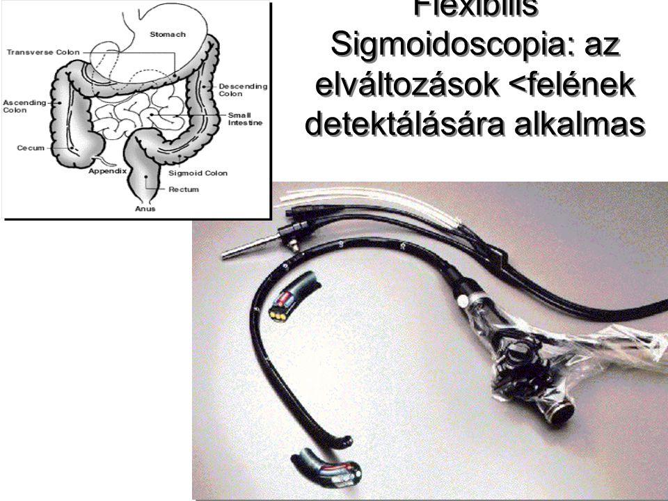 Flexibilis Sigmoidoscopia: az elváltozások <felének detektálására alkalmas