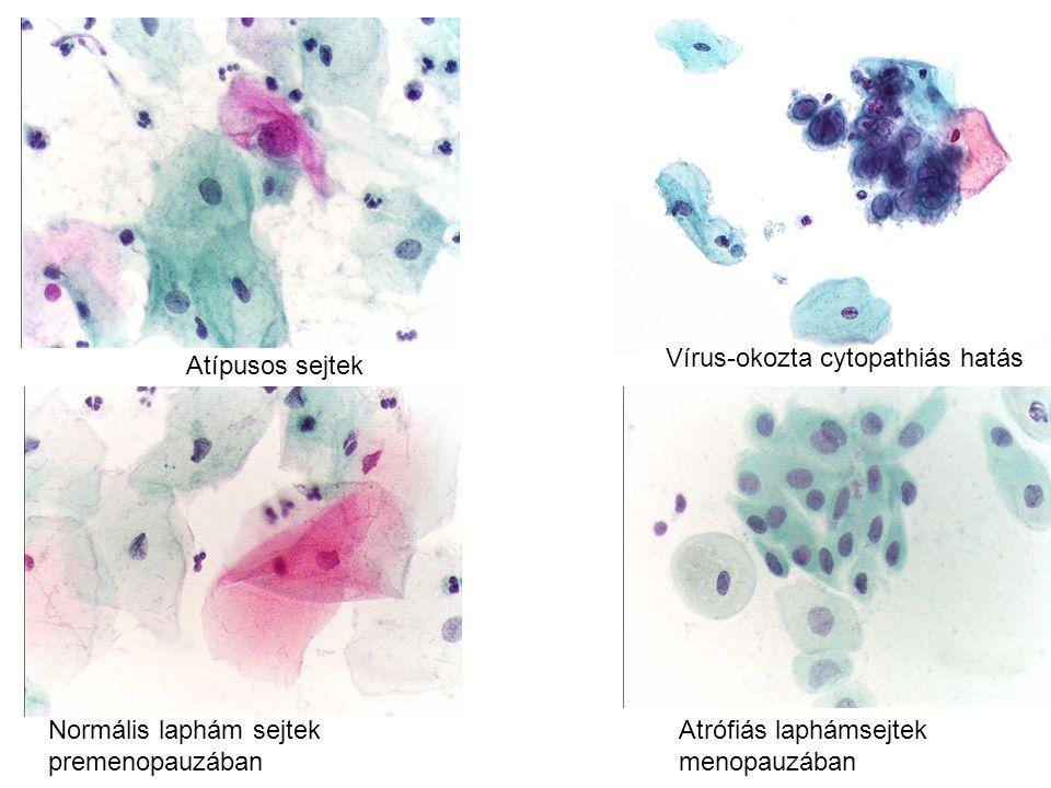 Normális laphám sejtek Atrófiás laphámsejtek premenopauzában menopauzában Atípusos sejtek Vírus-okozta cytopathiás hatás