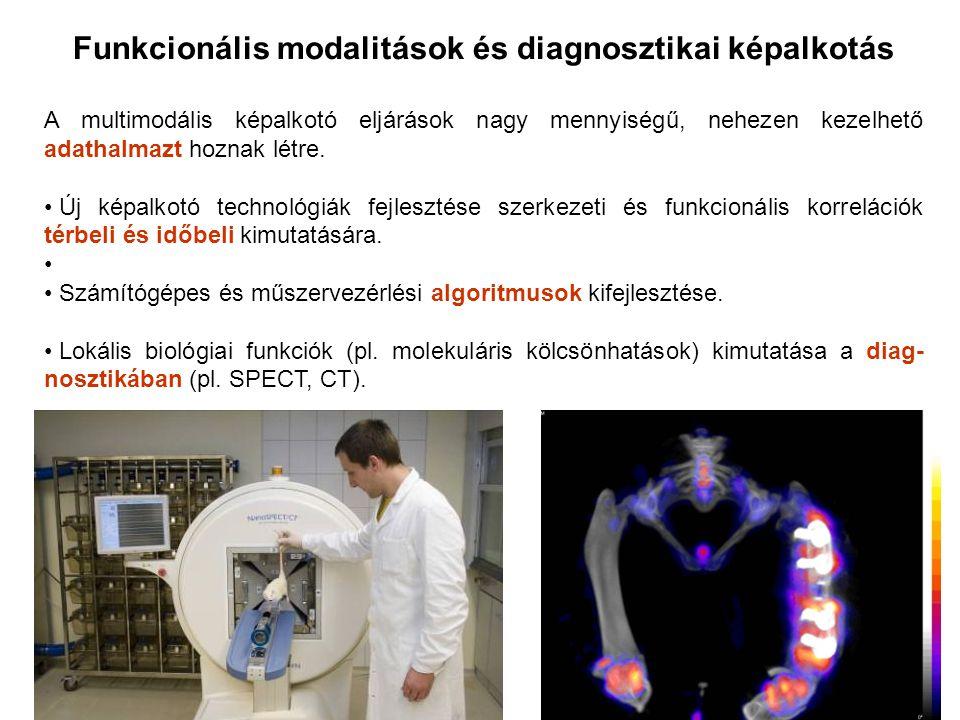 Funkcionális modalitások és diagnosztikai képalkotás A multimodális képalkotó eljárások nagy mennyiségű, nehezen kezelhető adathalmazt hoznak létre.