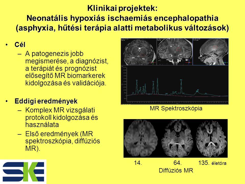 Távlati tervekTávlati tervek –Multinukleáris spektroszkópia (P, C) (in vivo kémiai analízis, agy, izom, máj) Az energiazavar pontosabb meghatározása A kvantifikáció javítása –ASL (arterial spin label) módszerrel a rCBF (regional cerebral blood flow) változások kvantitatív meghatározása –DTI (diffúziós tenzor imaging) - tractográfia az agyi plaszticitás vizsgálatára –Nonstimulus fMRI a thalamo-corticalis kapcsolatok vizsgálatára –A cytotoxicus oedema – Walerian degeneráció kapcsolatának vizsgálata Traktográfia: lefutó pályák ábrázolása a szöveti víz diffúziós vektorainak segítségével