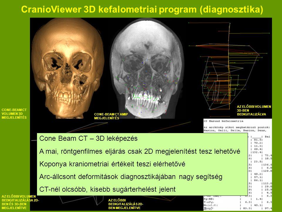 CranioViewer 3D kefalometriai program (diagnosztika) CONE-BEAM CT VOLUMEN 3D MEGJELENÍTÉS CONE-BEAM CT AMIP MEGJELENÍTÉS AZ ELŐBBI VOLUMEN 3D-BEN BEDIGITALIZÁLVA AZ ELŐBBI VOLUMEN BEDIGITALIZÁLÁSA 2D- BEN ÉS 3D-BEN MEGJELENÍTVE AZ ELŐBBI BEDIGITALIZÁLÁS 2D- BEN MEGJELENÍTVE AZ ELŐBBI BEDIGITALIZÁLÁS SZÁMOKBAN Cone Beam CT – 3D leképezés A mai, röntgenfilmes eljárás csak 2D megjelenítést tesz lehetővé Koponya kraniometriai értékeit teszi elérhetővé Arc-állcsont deformitások diagnosztikájában nagy segítség CT-nél olcsóbb, kisebb sugárterhelést jelent
