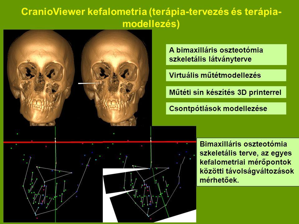 CranioViewer kefalometria (terápia-tervezés és terápia- modellezés) A bimaxilláris oszteotómia szkeletális látványterve Bimaxilláris oszteotómia szkeletális terve, az egyes kefalometriai mérőpontok közötti távolságváltozások mérhetőek.