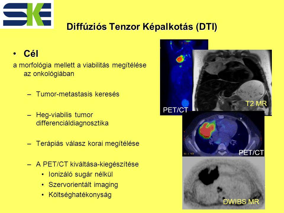 CélCél a morfológia mellett a viabilitás megítélése az onkológiában –Tumor-metastasis keresés –Heg-viabilis tumor differenciáldiagnosztika –Terápiás válasz korai megítélése –A PET/CT kiváltása-kiegészítése Ionizáló sugár nélkül Szervorientált imaging Költséghatékonyság Diffúziós Tenzor Képalkotás (DTI) PET/CT DWIBS MR T2 MR