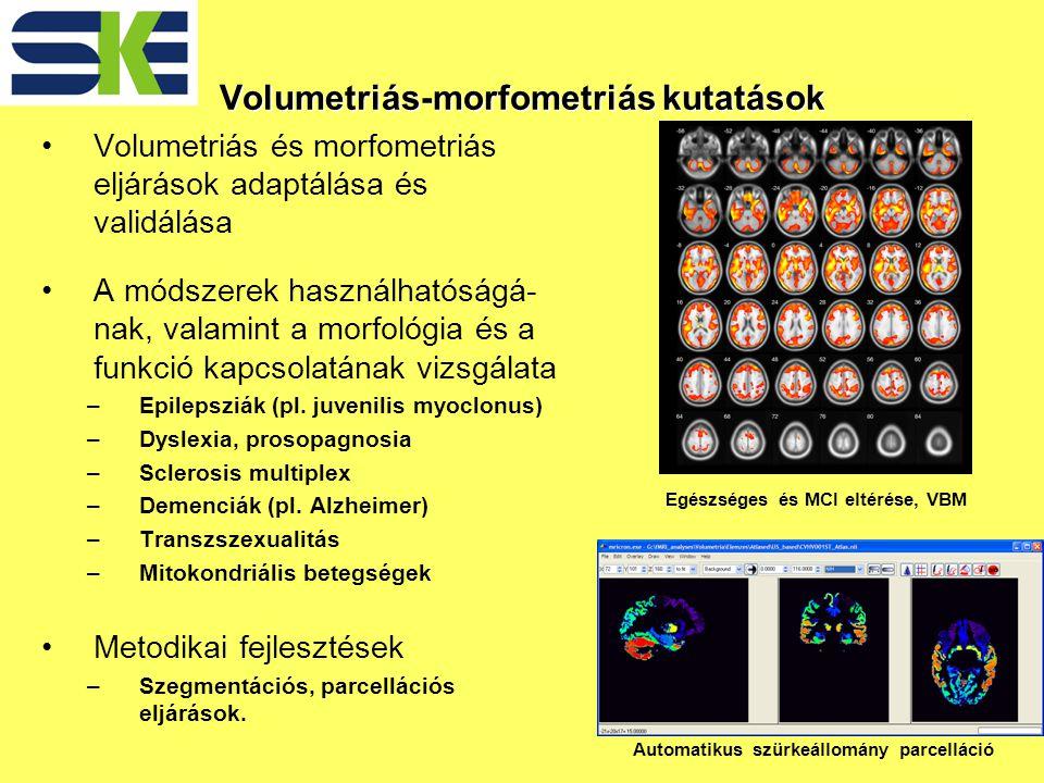 Volumetriás-morfometriás kutatások Volumetriás és morfometriás eljárások adaptálása és validálása A módszerek használhatóságá- nak, valamint a morfológia és a funkció kapcsolatának vizsgálata –Epilepsziák (pl.