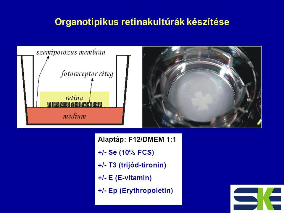 Organotipikus retinakultúrák készítése Alaptáp: F12/DMEM 1:1 +/- Se (10% FCS) +/- T3 (trijód-tironin) +/- E (E-vitamin) +/- Ep (Erythropoietin)