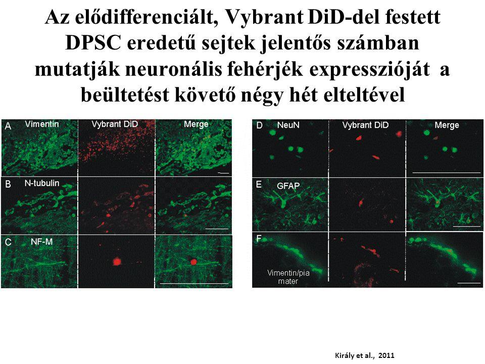 Az elődifferenciált, Vybrant DiD-del festett DPSC eredetű sejtek jelentős számban mutatják neuronális fehérjék expresszióját a beültetést követő négy